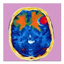 "Secondary brain cancers, Square Car Magnet 3"" x 3"""