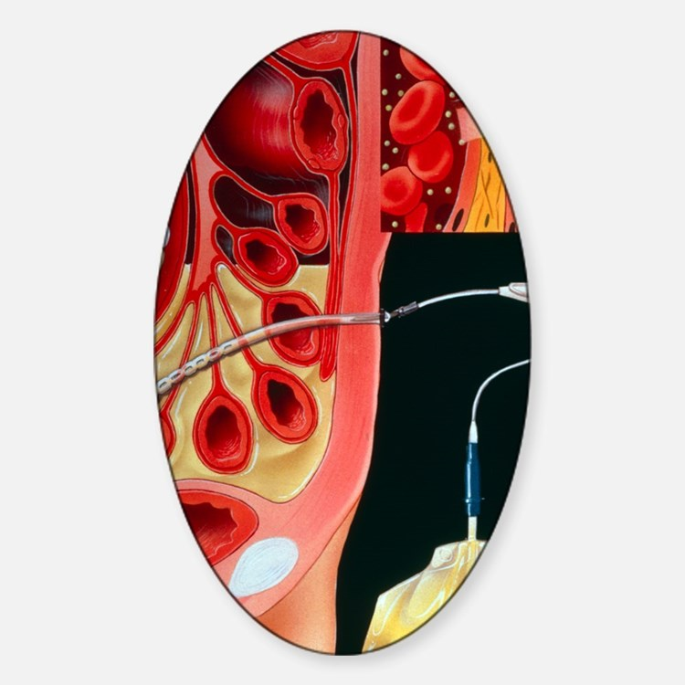 Section through human abdomen Decal