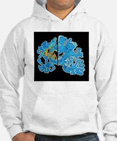 Sectioned brains: Alzheimer's di Hoodie