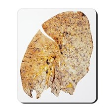 Section of human smoker's lung showing t Mousepad