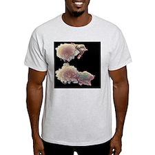 Skin cancer cells, SEM T-Shirt