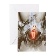 Sex toy in man's rectum, X-ray Greeting Card