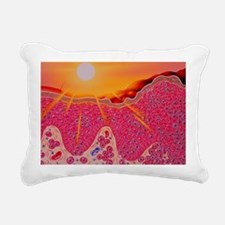 Skin cancer Rectangular Canvas Pillow