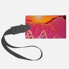 Skin cancer Luggage Tag