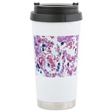 Skin cancer, light micrograph Travel Mug