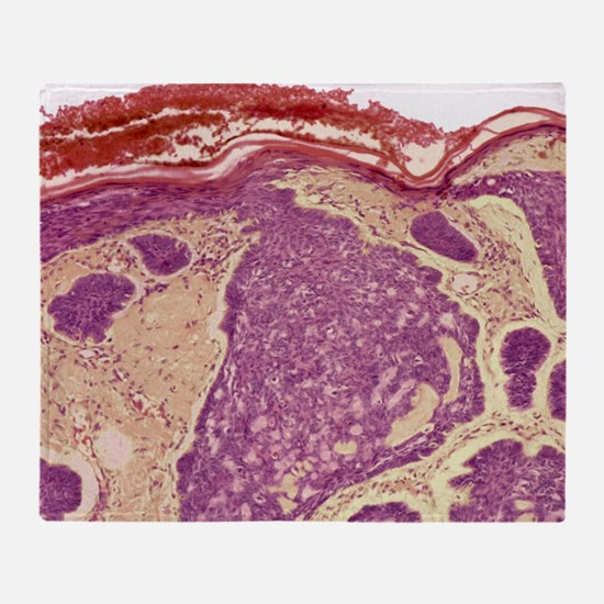 Skin cancer, light micrograph Throw Blanket