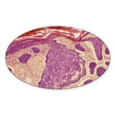 Skin cancer, light micrograph Decal