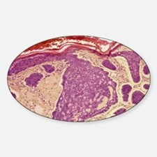Skin cancer, light micrograph Sticker (Oval)