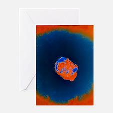 Smallpox virus Greeting Card