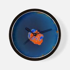 Smallpox virus Wall Clock