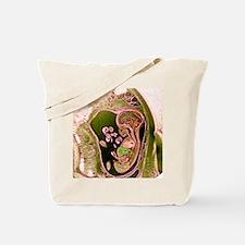 9 month foetus, MRI scan Tote Bag