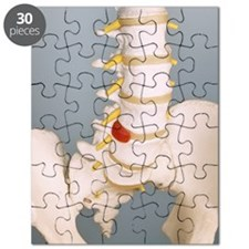 Slipped disc Puzzle