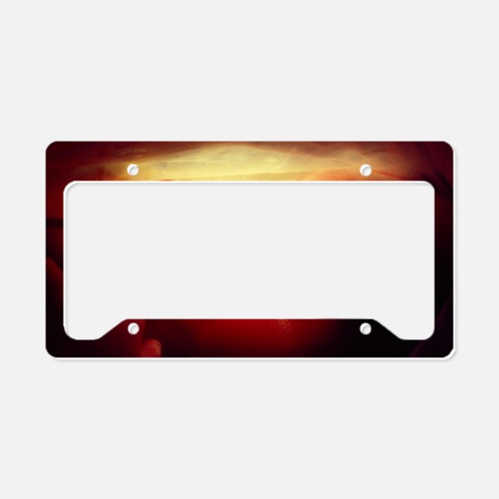20 week old foetus License Plate Holder