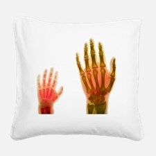 Adult and child hand X-rays Square Canvas Pillow