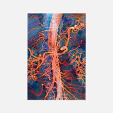 Abdominal arteries, X-ray Rectangle Magnet