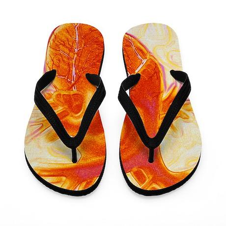 Artwork of a healthy human heart Flip Flops