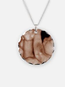 3-D foetal ultrasound Necklace