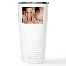 3-D foetal ultrasound Travel Mug