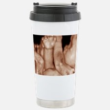 3-D foetal ultrasound Travel Mug