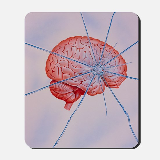 Artwork of brain with shattered glass su Mousepad