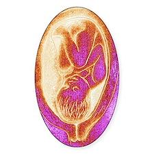 Artwork of foetus in 33rd week of p Decal