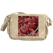 Blood clot, SEM Messenger Bag