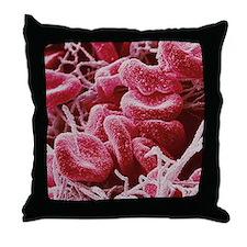 Blood clot, SEM Throw Pillow