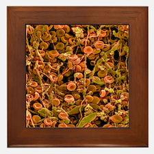 Blood clot Framed Tile