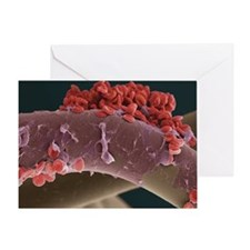 Blood clot, SEM Greeting Card