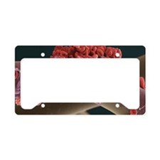 Blood clot, SEM License Plate Holder