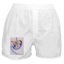 Artwork showing the vomiting reflex Boxer Shorts