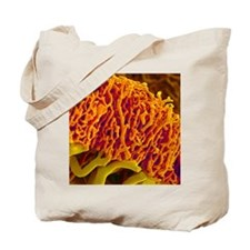 Blood vessels from the colon, SEM Tote Bag