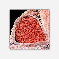"""Blood-filled foetal aorta,  Square Sticker 3"""" x 3"""""""