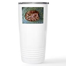 Bone lacuna, SEM Travel Mug