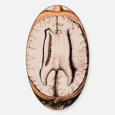 Brain anatomy Decal
