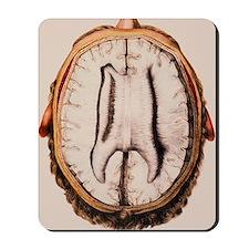 Brain anatomy Mousepad
