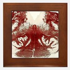 Brainstem cross-section, light microgr Framed Tile