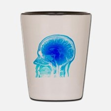 Brain anatomy, MRI scan Shot Glass