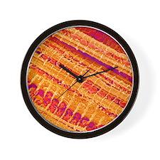 Cardiac muscle Wall Clock