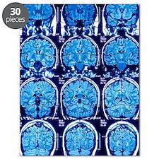 Brain scans, MRI scans Puzzle