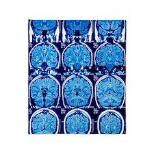 Brain scans, MRI scans Throw Blanket