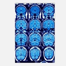 Brain scans, MRI scans Postcards (Package of 8)