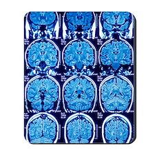 Brain scans, MRI scans Mousepad