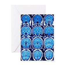 Brain scans, MRI scans Greeting Card