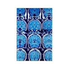 Brain scans, MRI scans Rectangle Magnet
