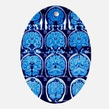 Brain scans, MRI scans Oval Ornament