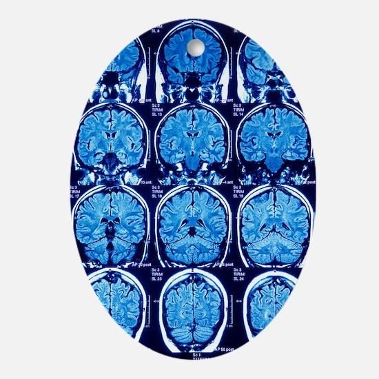 Brain scans, MRI scans Oval Ornament