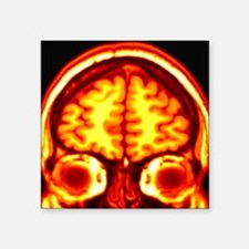 """Brain, MRI scan Square Sticker 3"""" x 3"""""""
