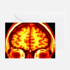 Brain, MRI scan Greeting Card