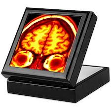 Brain, MRI scan Keepsake Box